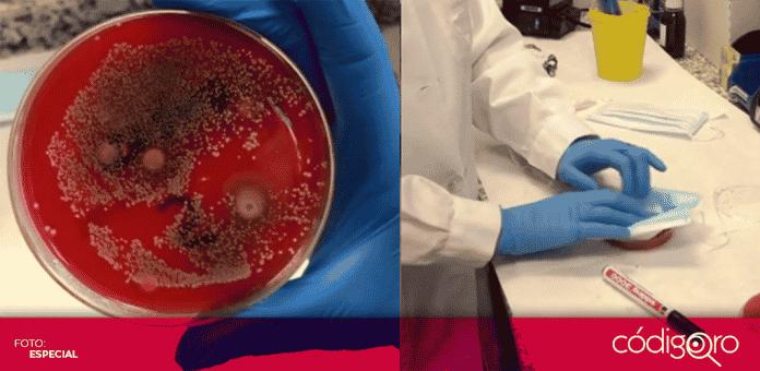Una farmacéutica de España demostró las bacterias que pueden crecer en los cubrebocas, si estos se usan por largo tiempo sin ser cambiados, o al no lavar los de tela